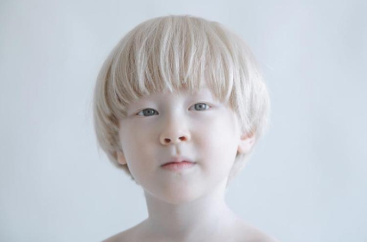 Ketahui Punca dan Rawatan Bagi Penyakit Albinisme